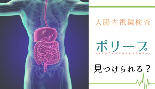 大腸内視鏡検査でポリープは見つけられる?